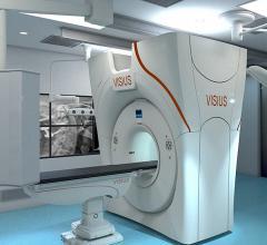 IMRIS siemens CT systems hybrid OR Visius iCT