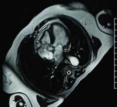 cardiac magnetic resonance, CMR, SPECT, major adverse cardiovascular events, MACE predictor, Annals of Internal Medicine study