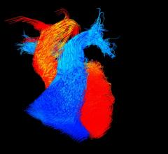 BHF, Reflections of Research image competition, U.K., 4-D MRI, heart blood flow