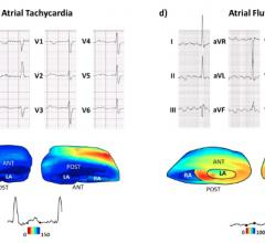 Electromechanical Wave Imaging (EWI) is a new, high-frame rate 3-D rendered ultrasound technique that can noninvasively map the electromechanical activation of heart rhythm. This example shows the ECG tracings compared to the EWI image of the heart.
