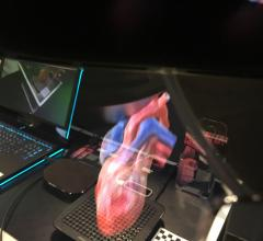 "SoftServe's ""Touch My Heart"" work-in-progress allows anyone wearing an AR headset to see and interact with the heart."