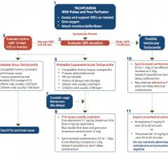 This is the AHA pediatric tachycardia PALS algorithm flow sheet.