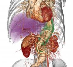University of Michigan Partnership Guides New Approach to Acute Aortic Dissection
