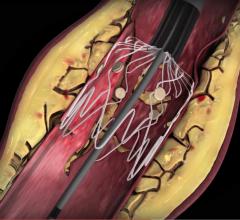 Intact Vascular, Tack Endovascular System