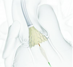 Medtronic's CoreValve Evolut R gained FDA approval for intermediate risk patients