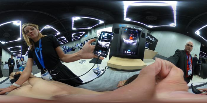 360 degree image of a cardiac ultrasound exam on a Butterfly iQ system at the 2019 American Society of Echocardiography (ASE).