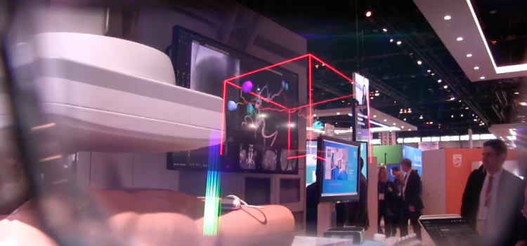 Philips Healthcare Augmented reality image in the cath lab at RSNA 2017.