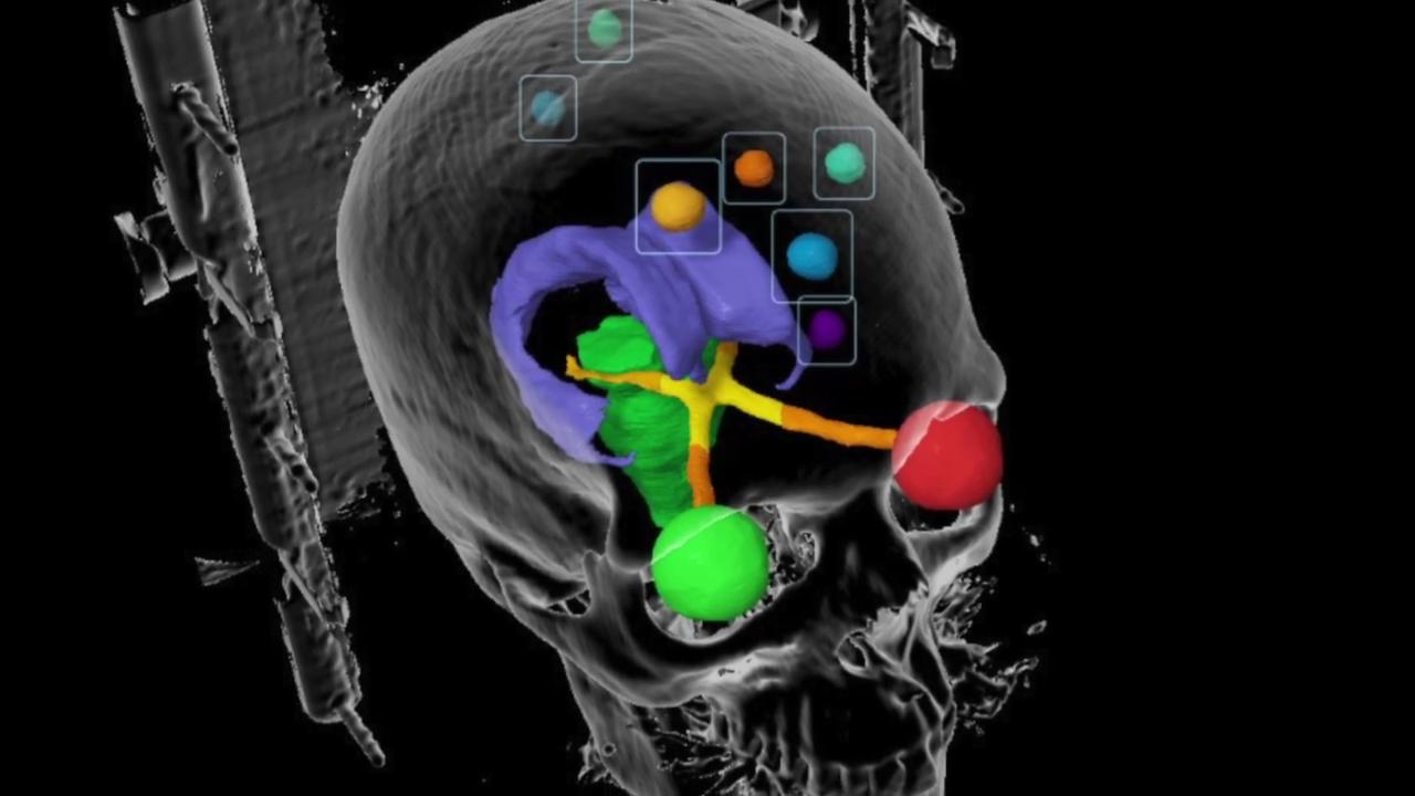 VIDEO: The Future of Radiation Oncology | Imaging Technology