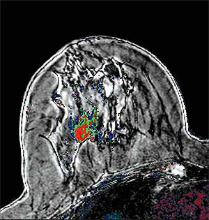 MRI Reaches into Numerous Arenas