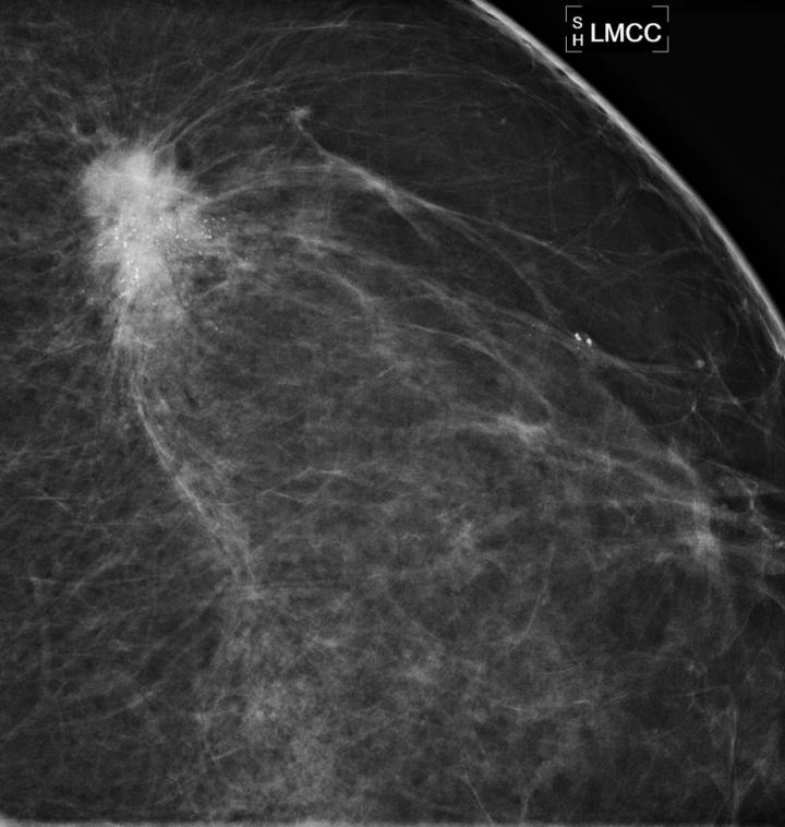 RSNA 2014, risk-based cancer screenings, mammography