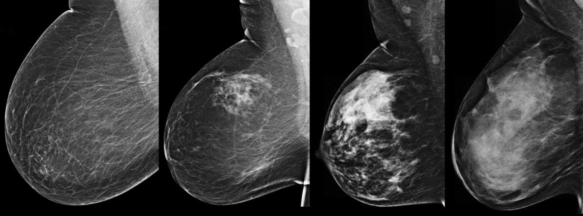 dense breast tissue, breast density imaging, BIRADS, BI-RADS, mammography grading system, comparison of dense breast tissue, Fibroglandular densities