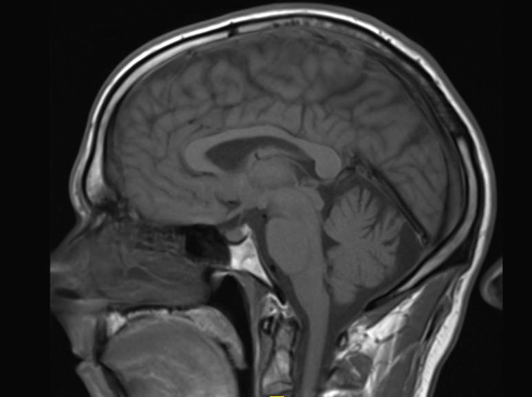 gadolinium, brain, contrast MRI, Radiology, Kanal, brain, brain MRI with contrast