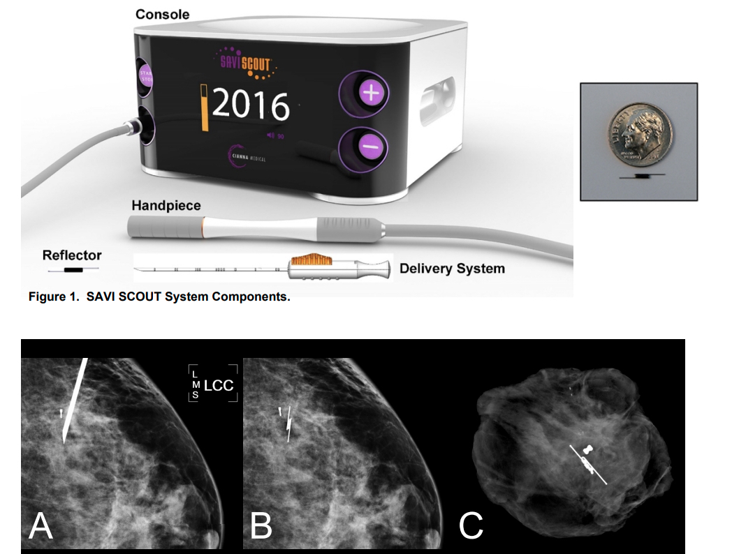 The Cianna Medical Savi Scout Radar Localization system, showing the console, detector and the marker, with a size comparison and X-ray images inside breast tissue. For more information on the learning curve of its use http://sabcs16.posterview.com/nosl/p/P1-11-06.