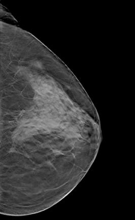 dense breast tissue as shown on this mammogram