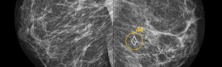 ScreenPoint's Transpara automatically identifies soft-tissue and calcification lesions and combines the findings of all available views