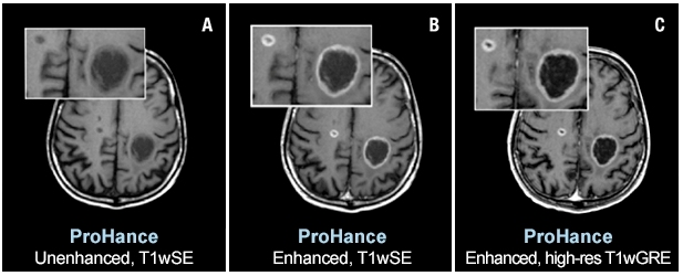 Two brain metastases from primary lung cancer are contrast enhanced in the brain of a 61-year-old male. Speakers at AHRA 2019 will state that ProHance and other macrocyclic MR agents present a very low risk to patients. Images courtesy of Bracco