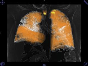 Detectors Versus Tubes: CT Vendors Prepare for Battle