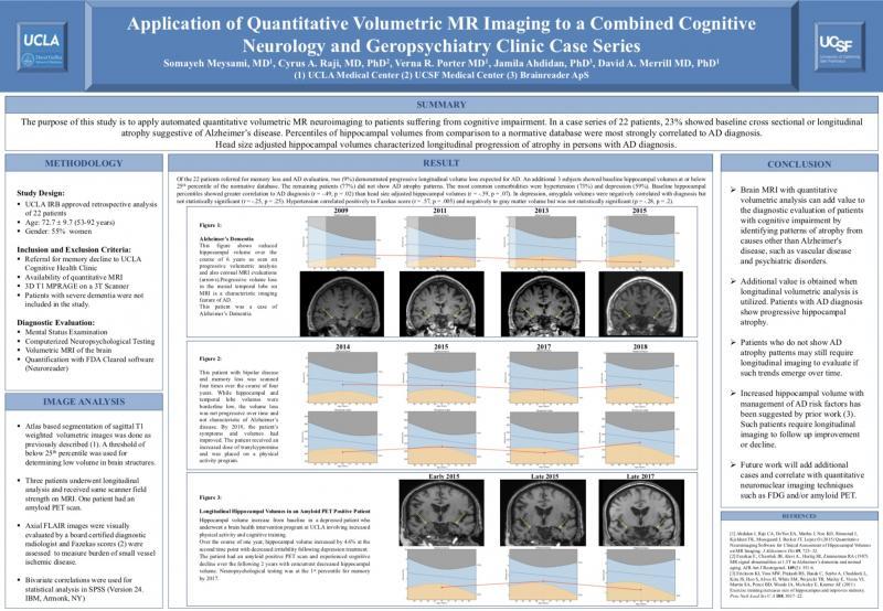 UCLA Brain MRI poster memory loss