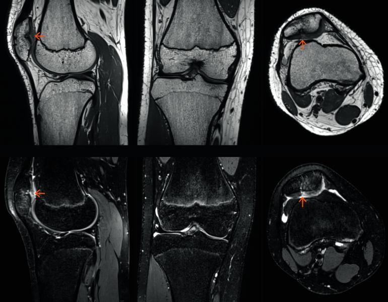 Siemens GOKnee3D scan visualize abnormalities (orange arrows) in the knee of a 14-year-old boy in orthopedic imaging. #RSNA2017, #RSNA17