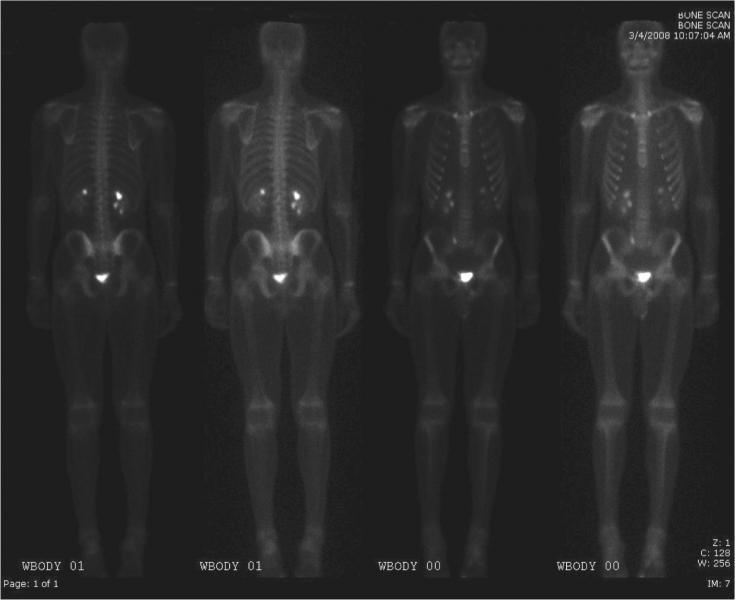 non-Hodgkins lymphoma, PET/CT, recurrence, SNMMI 2015