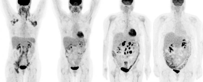 PET, PSMA, radiotracer, SNMMI 2015, prostate cancer