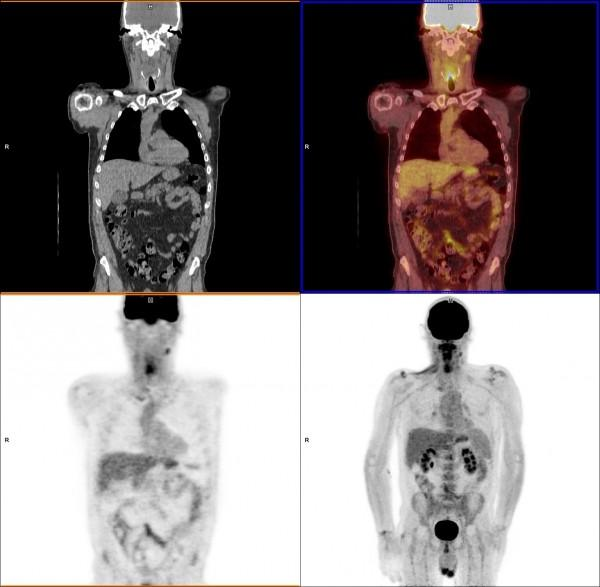 A PET-CT head and neck cancer scan showing various image reconstructions