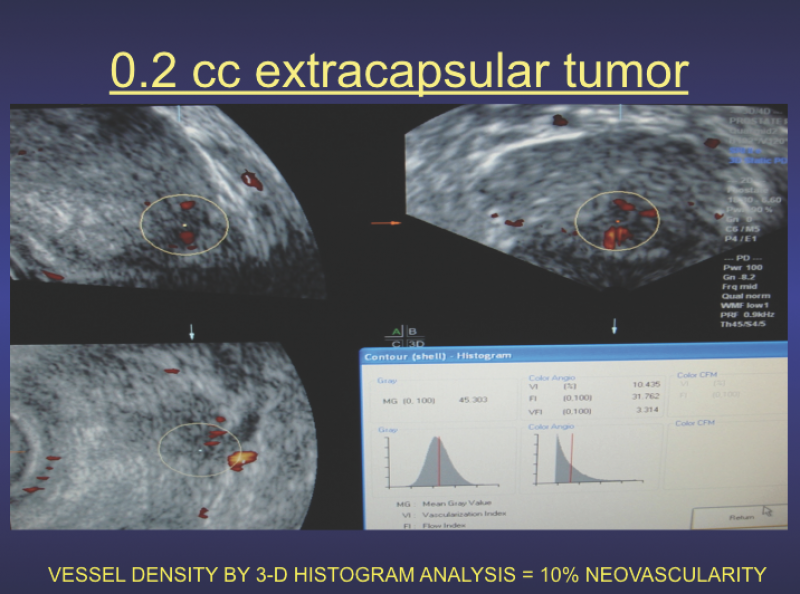 Histogram-volumetric study shows extracapsular tumor has a 10 percent malignant vessel density, which can be used as a reference measurement to assess treatment effect on serial scans