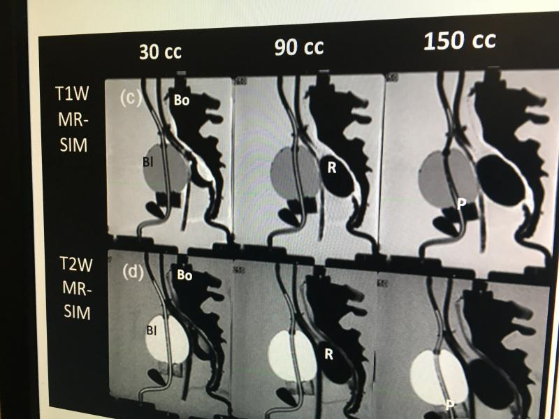 A set of synthetic CT images created from T1 and T2 weighted MR imaging of a prostate/rectum phantom at Henry Ford Hospital. The hospital is one of the research centers developing  synthetic CT imaging for treatment planning to avoid the need for CT scans of a patient just for treatment planning purposes when they already have a more detailed soft tissue MRI exam of  the anatomy.