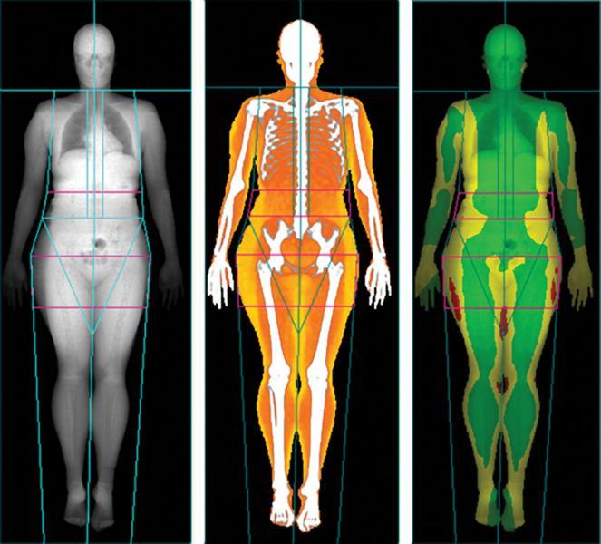 Body scans, Lunar iDXA