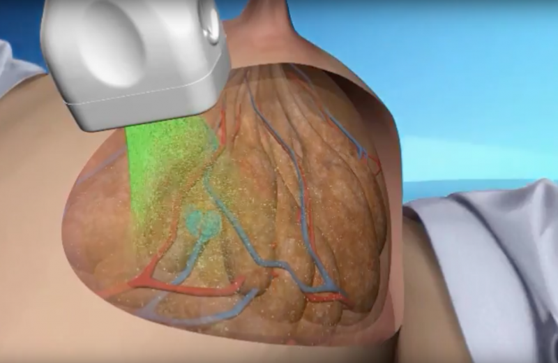 An example of opto-acoustic breast imaging using the Seno system.