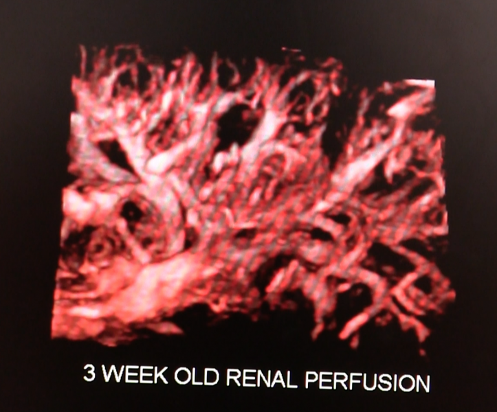 Toshiba's SMI 3-D software for its Aplio ultrasound systems enables 3-D/4-D imaging of low perfusion vessels in organs. This example is a reconstruction of four-month old fetal renal perfusion.