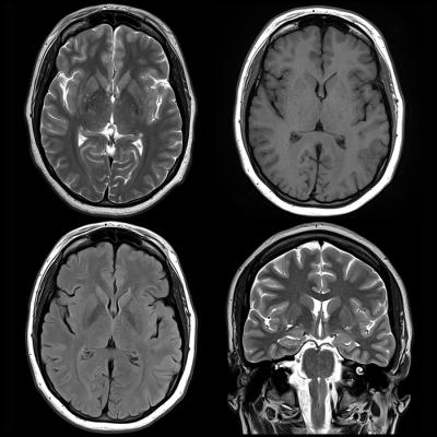 Brain Differences In Adhd >> Mri Shows Brain Differences Among Adhd Patients Imaging