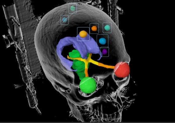 First Patient Enrolled in World's Largest Brain Cancer Clinical Trial