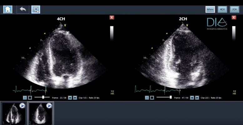 LVivo EF Comparable to MRI, Contrast Echo in Assessing Ejection Fraction