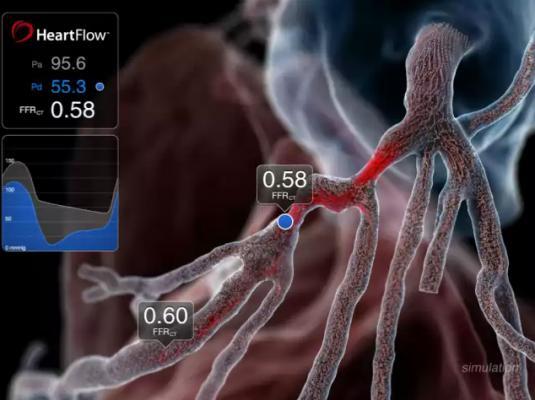 FFR-CT, HeartFlow, PLATFORM trial, ESC 2015, ICA, fractional flow reserve, computed tomography