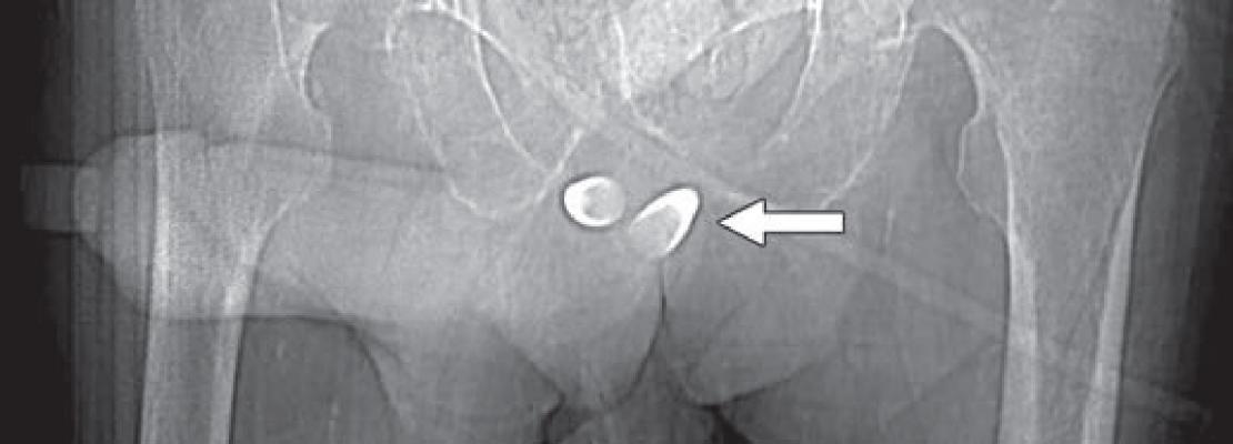AJR Publishes Gender Affirmation Surgery Primer for Radiologists. transgender radiology images,