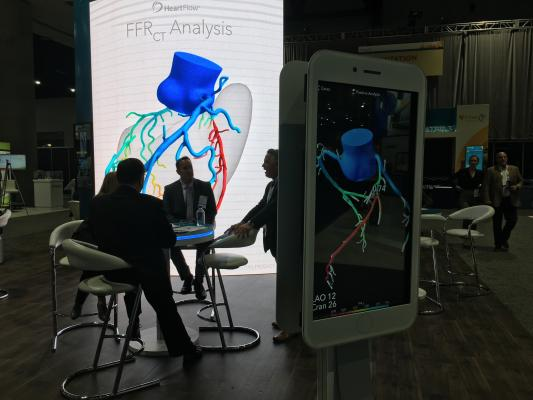 HeartFlow Analysis Successfully Stratifies Heart Disease Patients at One Year