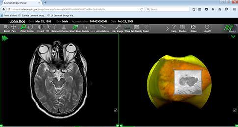 Hyland Healthcare Adds ImageNext Imaging Workflow Optimizer to Enterprise Imaging Suite