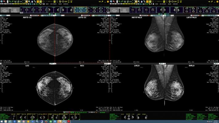 Konica Minolta Highlights New Exa Mammo Features at SBI/ACR Breast Imaging Symposium