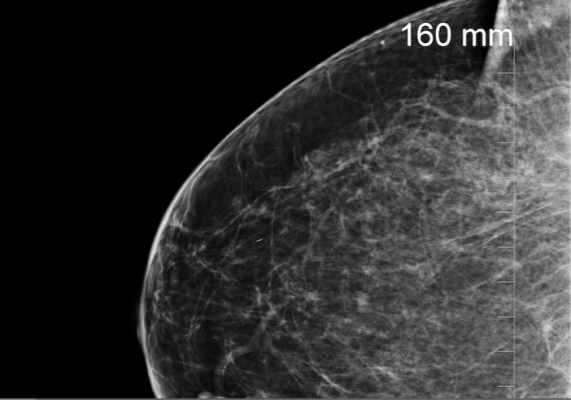 Therapixel Wins the Digital Mammography Challenge. Marilyn Fornell