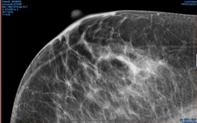 mammographic density, diabetes treatment, clinical study, 10th European Breast Cancer Conference