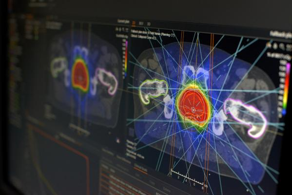 Mississippi Cancer Center Combines RayStation and TomoTherapy for Prostate Cancer Case