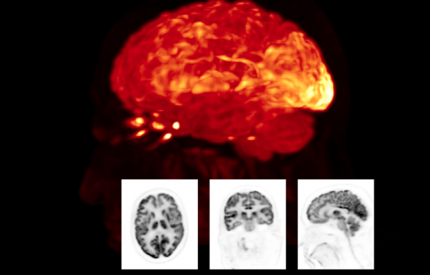 Nuclear brain scan performed on a Biograph Vision positron emission tomography/computed tomography (PET-CT) system from Siemens Healthineers.