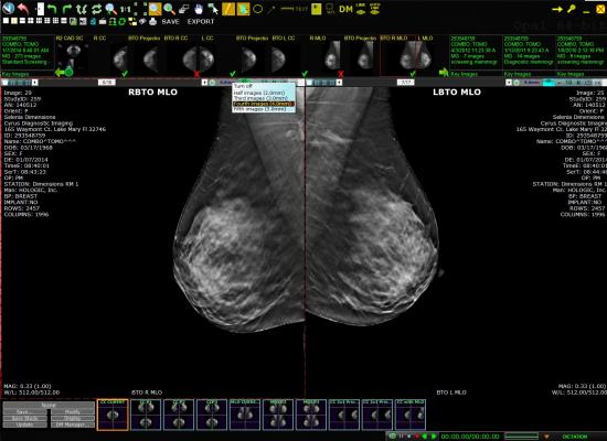 Exa PACS/RIS Increases Productivity for Cleveland Teleradiology and Imaging Center