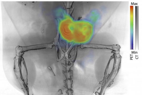 prostate cancer, PET imaging, Johns Hopkins, Daniel Thorek, 11B6 antibody