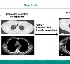 Biomarker blood test accurately confirms remission in non-smoker with HPV-associated oral cancer. ASTRO 2018 #ASTRO2018 #ASTRO #ASTRO18