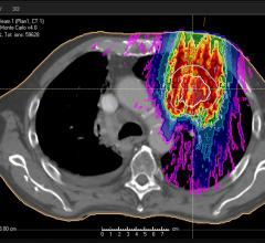 ASTRO Updates Guidelines for Palliative Lung Radiation Therapy