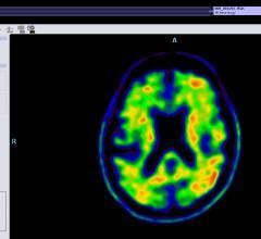 Data Demonstrates F-18 Flutemetamol PET Indicates Progression From Amnestic Mild Cognitive Impairment to Alzheimer's