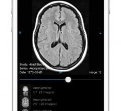 Ambra Health Launches Mobile App for Instant Medical Image Access