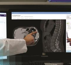 Oxford University Hospitals Employs Barco Synergi for Multi-disciplinary Cancer Conferences